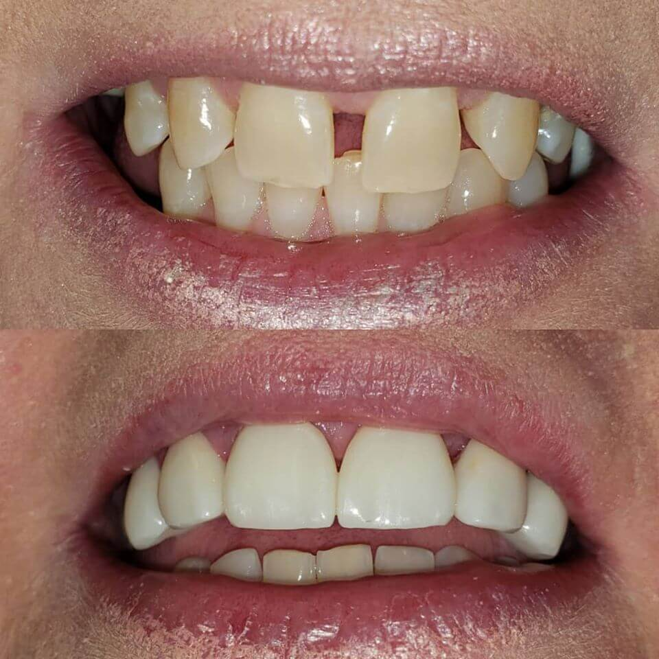 Dental crowns and bridge in Locust, NC before and after