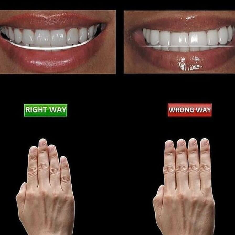 Invisalign in Locust, NC before and after