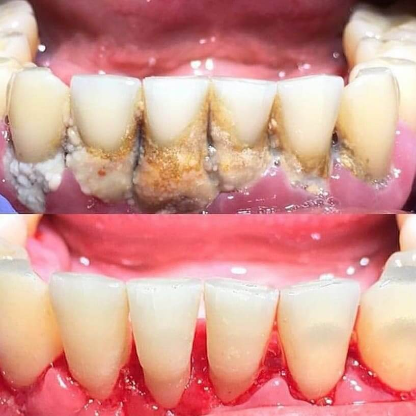 Tartar removal in Locust, NC before and after