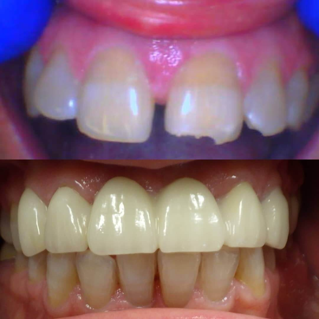 Crowns in Locust, NC before and after