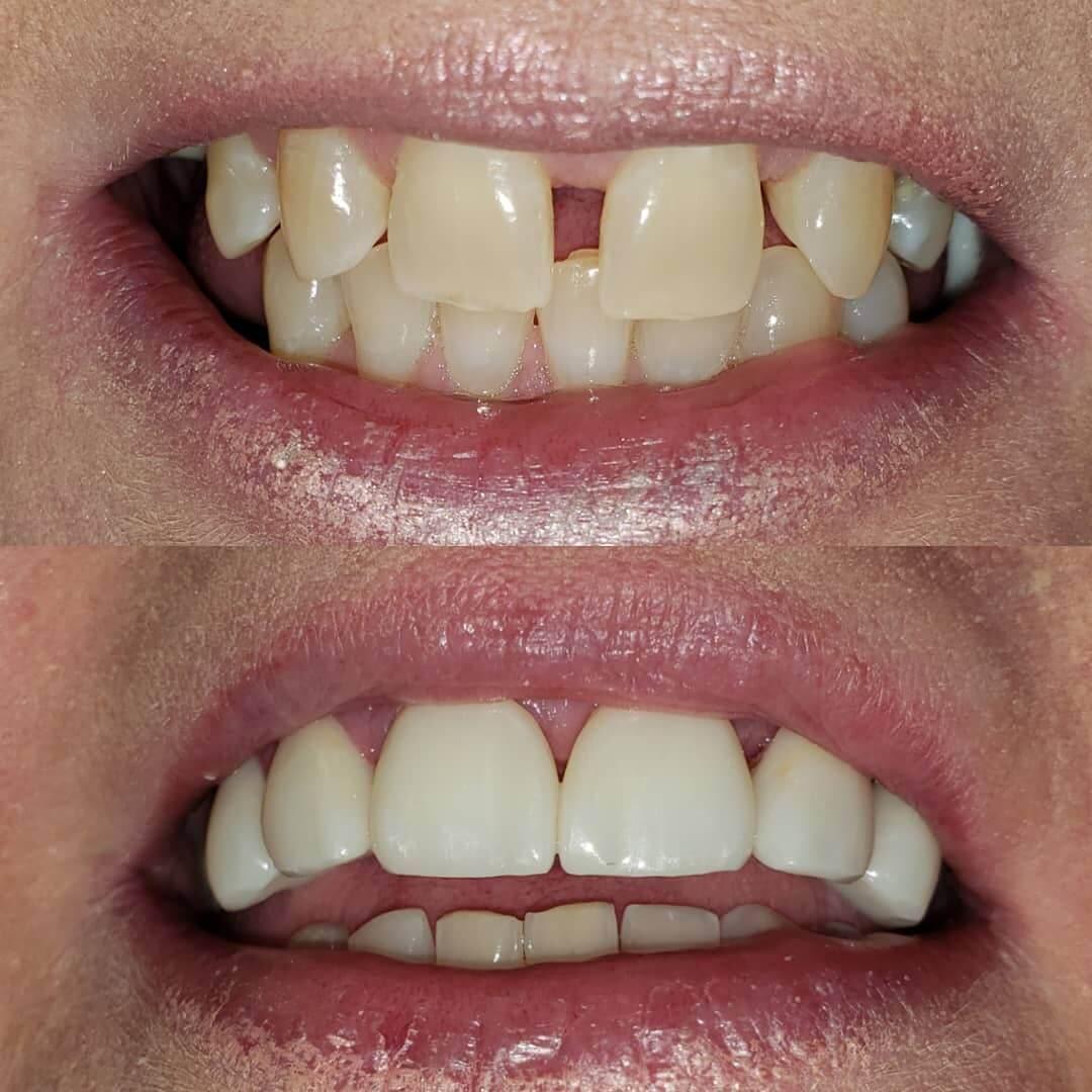 Porcelain dental veneers in Locust, NC before and after