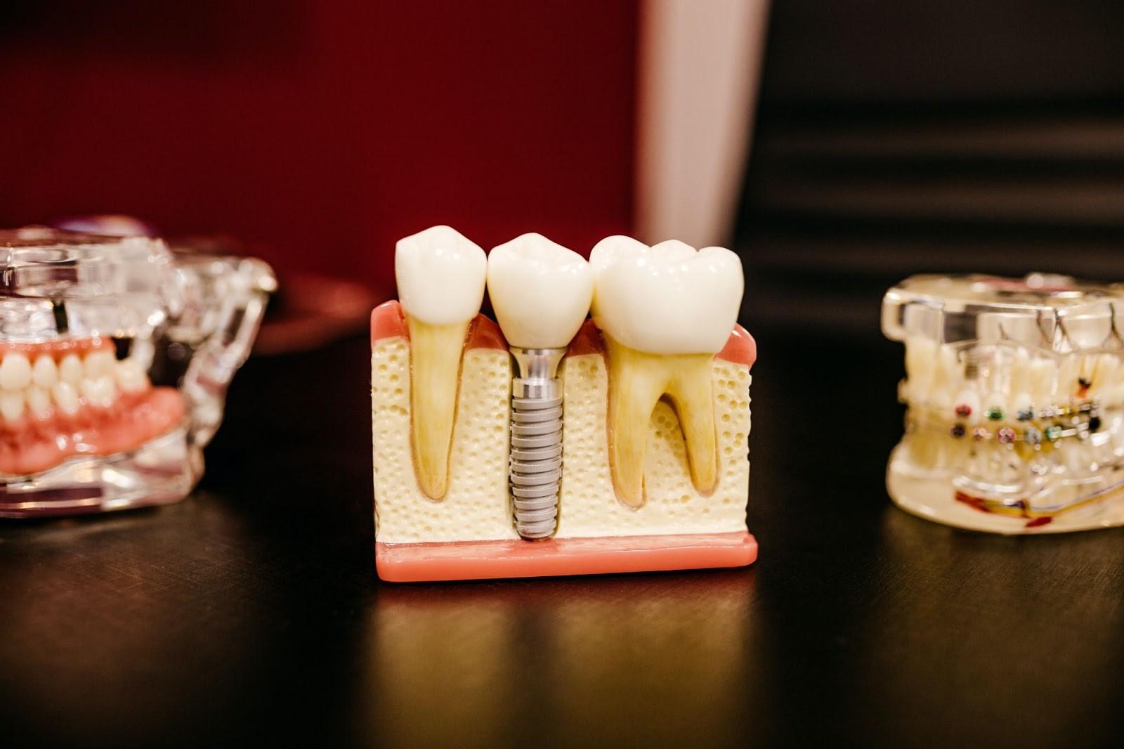 Dental Implants: Amazing Benefits for Seniors