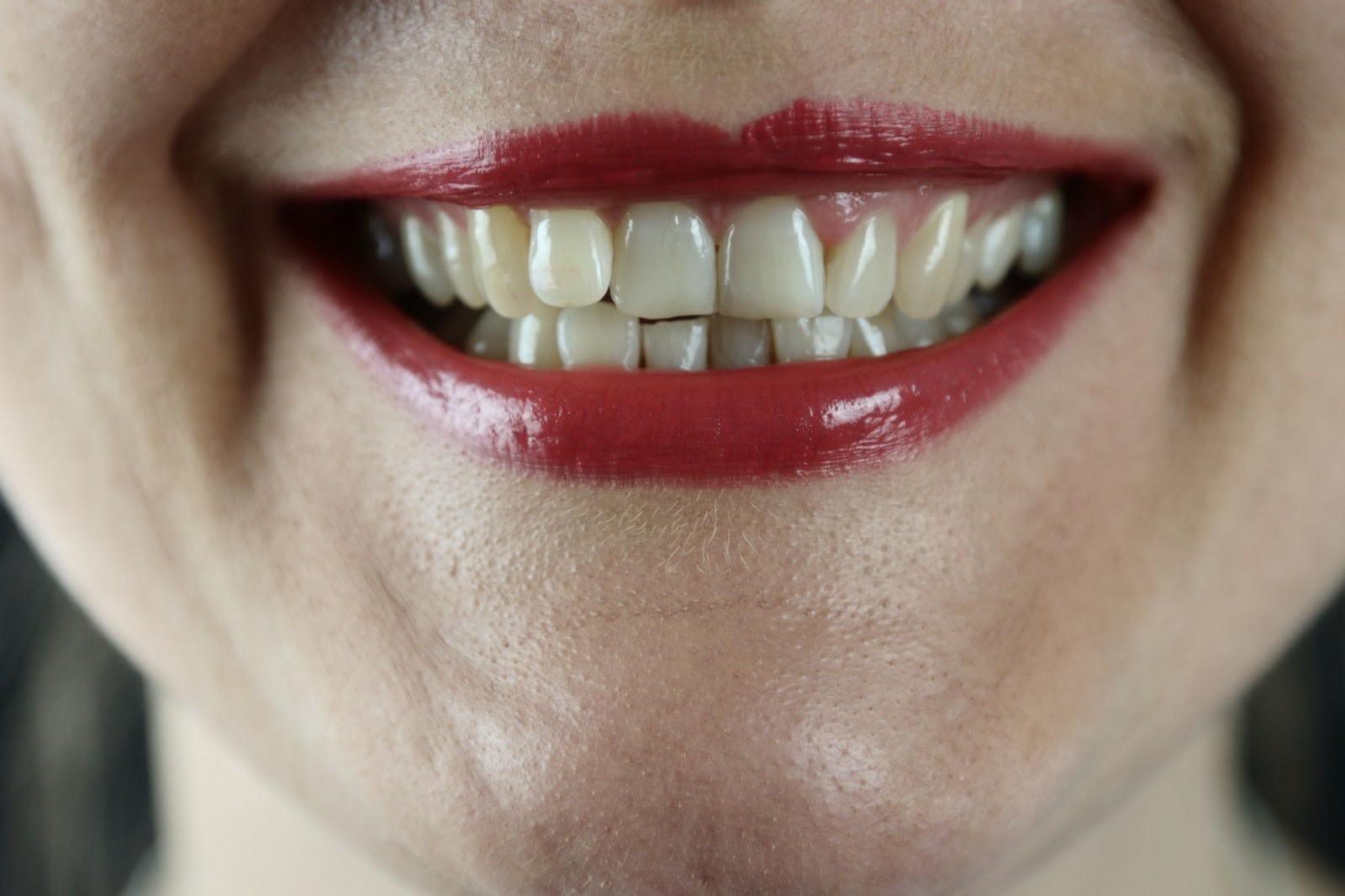 Top signs of tooth decay