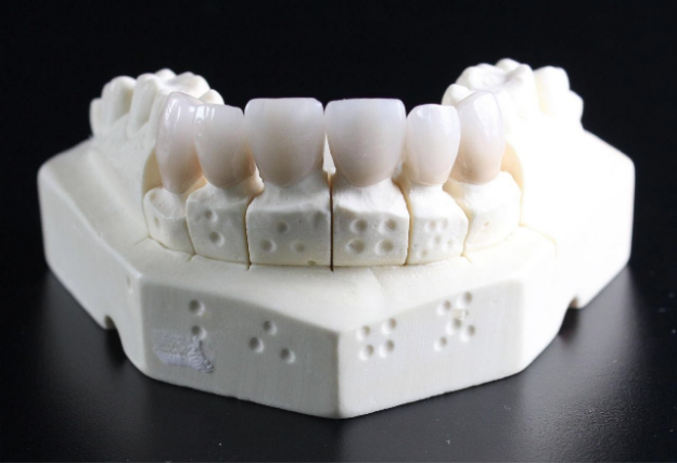 Pros and Cons of Dental Crowns