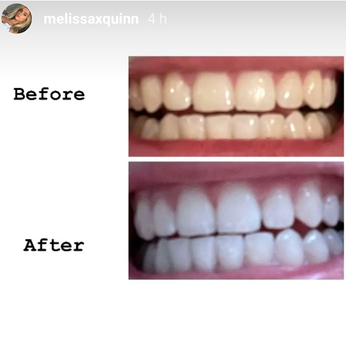 Before & After Melissaquinn Website