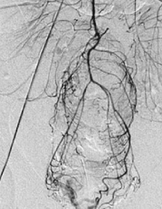 Jerusalem Vascular Hemorrhoid Treatment