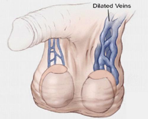 Jerusalem Vascular Varicocele Treatment
