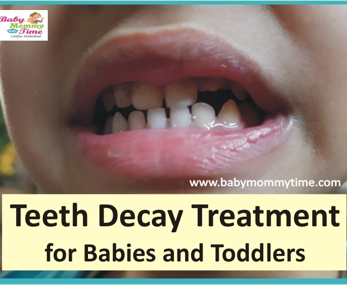 Baby Teeth Decay Treatment