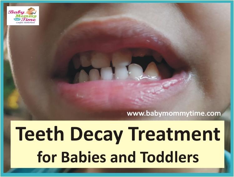Baby Teeth Decay Treatment
