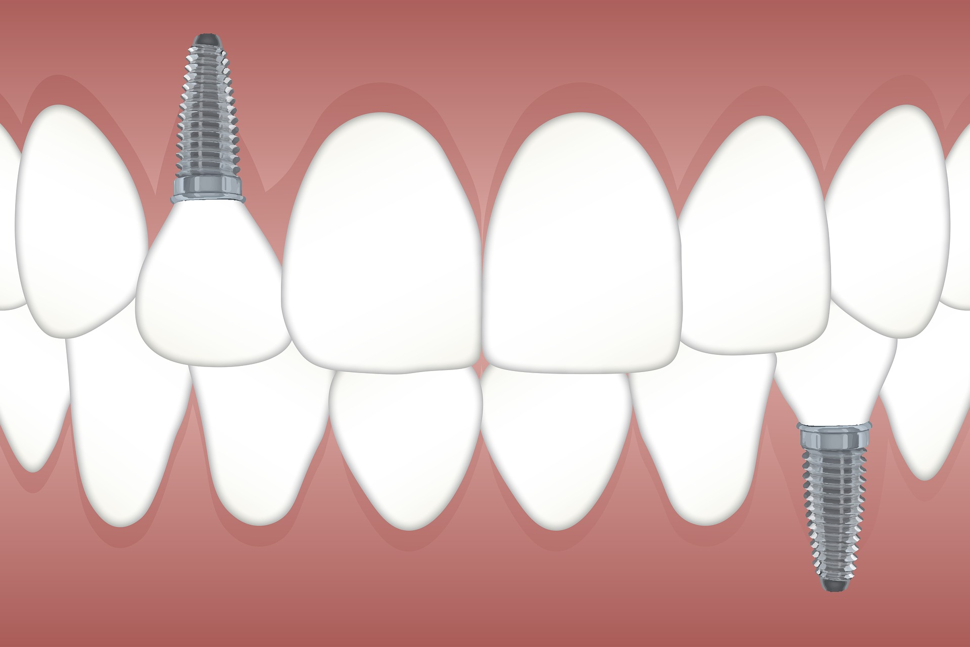 Tooth Extractions vs Dental Implants – What Is Best?