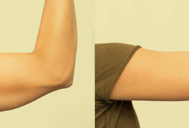 Arm Fat Surgery Before and After