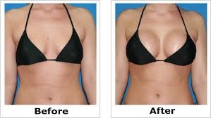 HOW TO  ENLARGE HIPS AND BUMS + Botcho, BREAST  Skin Lightening Pills and penis enlargment  QUICK RESULTS +27785167256