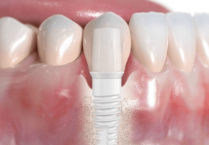 Ceramic Zirconia-implants