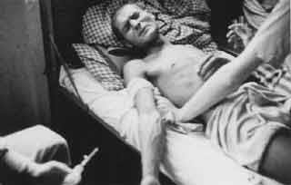 Gypsy Victim of Dachau Medical Experiment. National Archives; Shoah/Holocaust; US Holocaust Memorial Museum