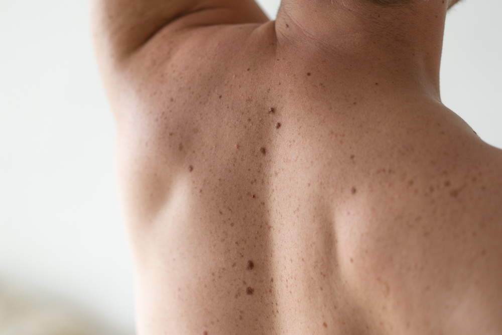 Do you know how to check for signs of skin cancer on yourself?