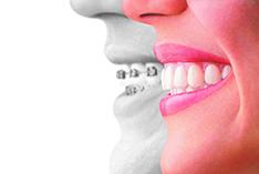 Finazzo Orthodontic Specialists