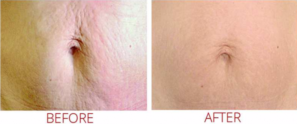 Microneedling abdomen - before & after