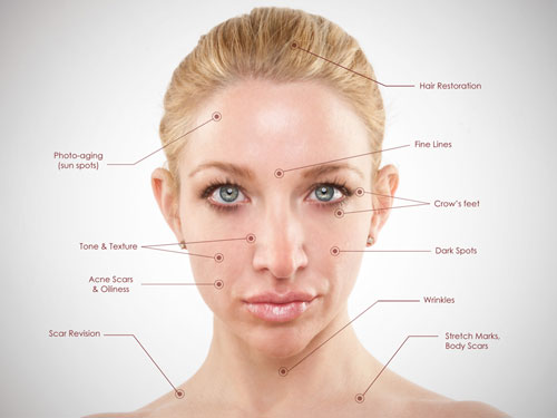 microneedling treatment for skin lines and wrinkles