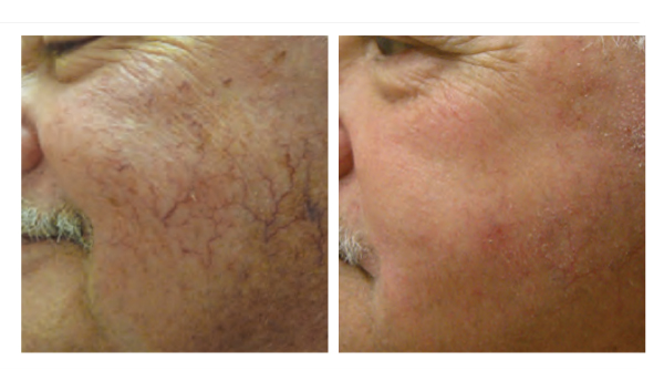 SkinTyte Nashville Light Based Skin Treatment