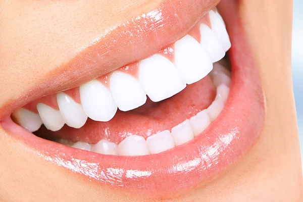 teeth-whitening-01