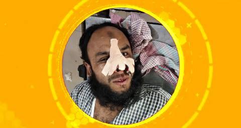 Gangy-pul-Ara-injured.jpg