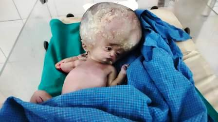 A girl with a odd head was born in Ara