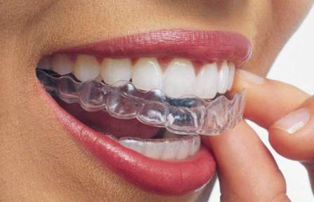 invisible braces philadelphia best dentists philadelphia near redlion road bustleton road