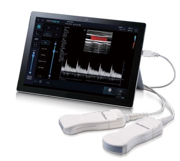 Minisono Portable Tablet Ultrasound
