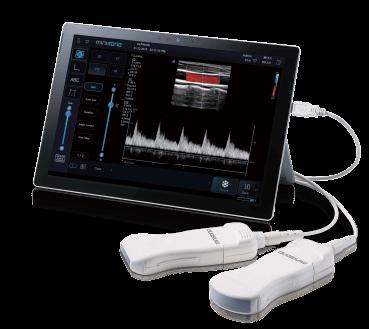 Minisono Portable Tablet Ultrasound