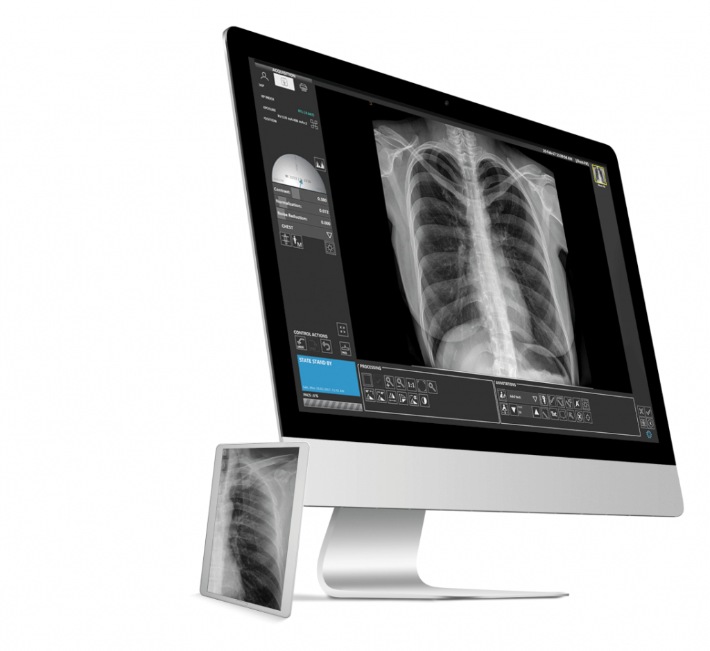 Avanse Imaging Software