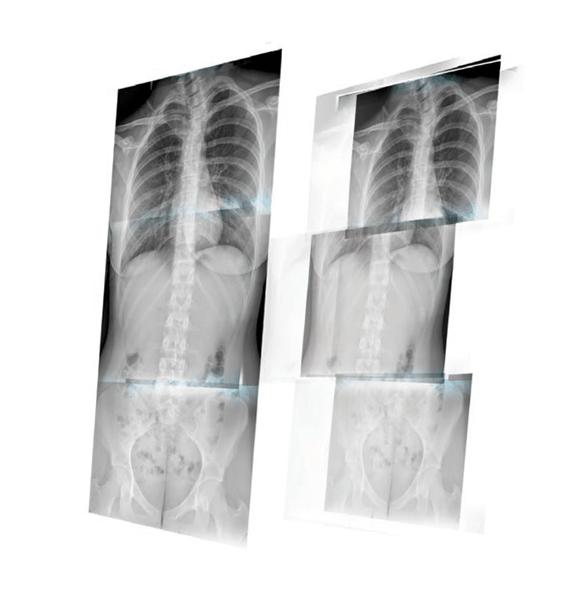 Advanced DR imaging
