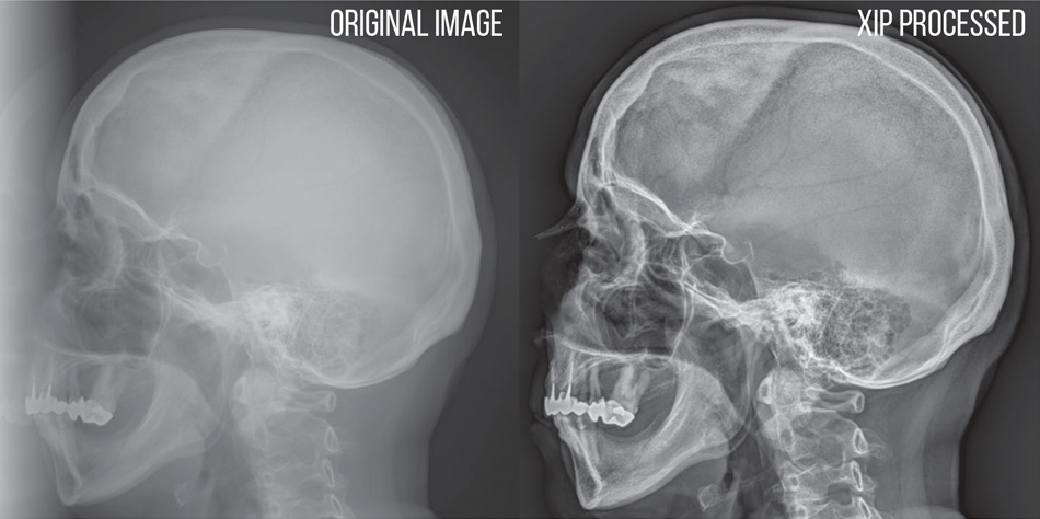 Anatomy driven image processing