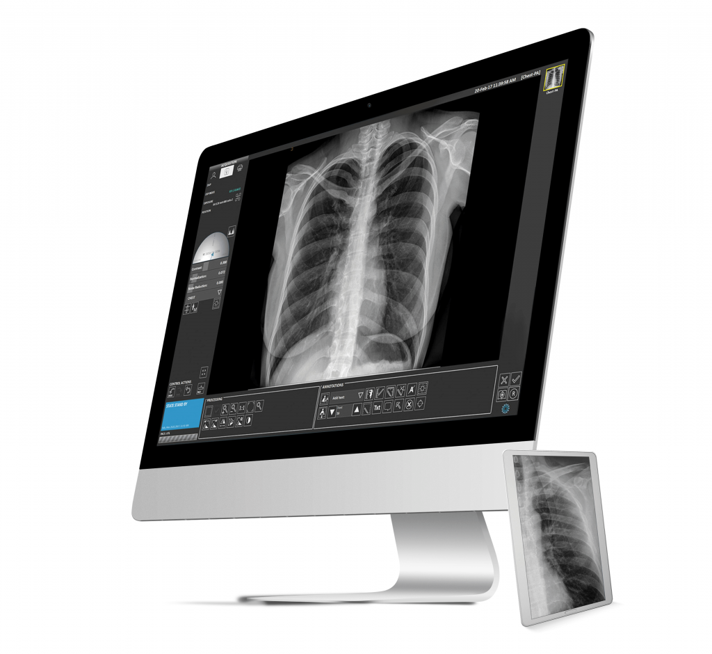 Avanse DR Image Software