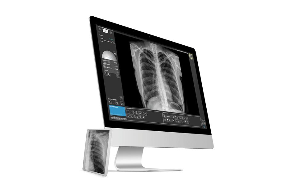 Avanse, DR imaging software