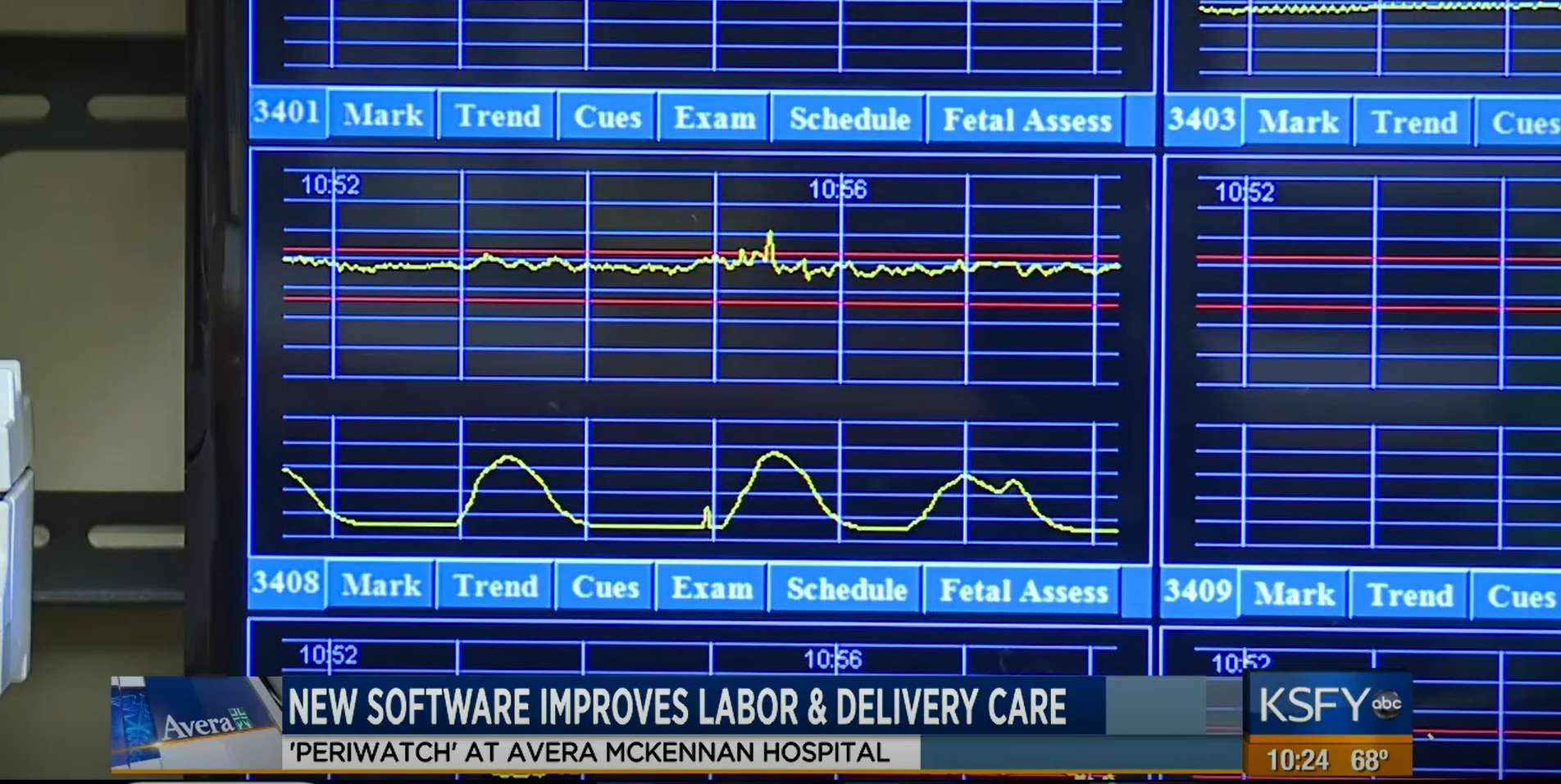 PeriGen improves standard of care for labor and delivery at Avera Health
