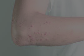 HIVES / SWELLING - AllergySA Services