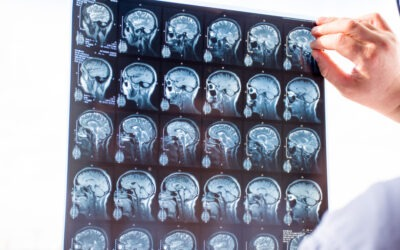 Catastrophic Injury Cases: Common Misconceptions of Traumatic Brain Injury (TBI)