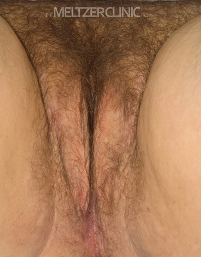 Single Stage Vaginoplasty Patient B