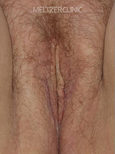 Single Stage Vaginoplasty Patient F