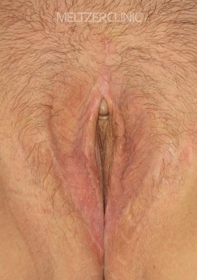 Vaginoplasty with Labiaplasty Patient G
