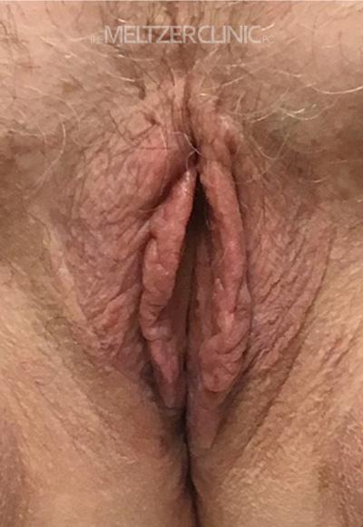 Vaginoplasty with Labiaplasty Patient H