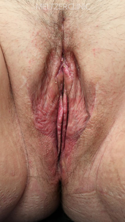 Vaginoplasty with Labiaplasty Patient I
