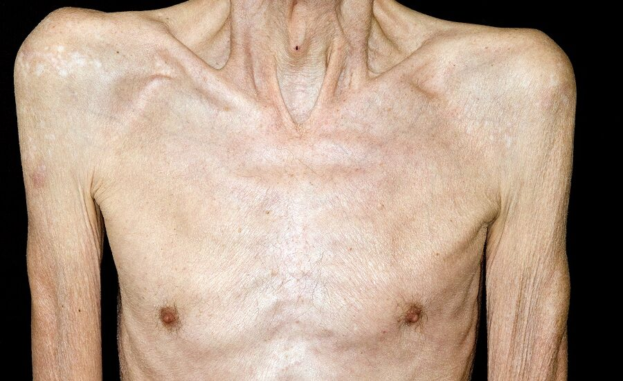 Protein Muscle Mass Cancer