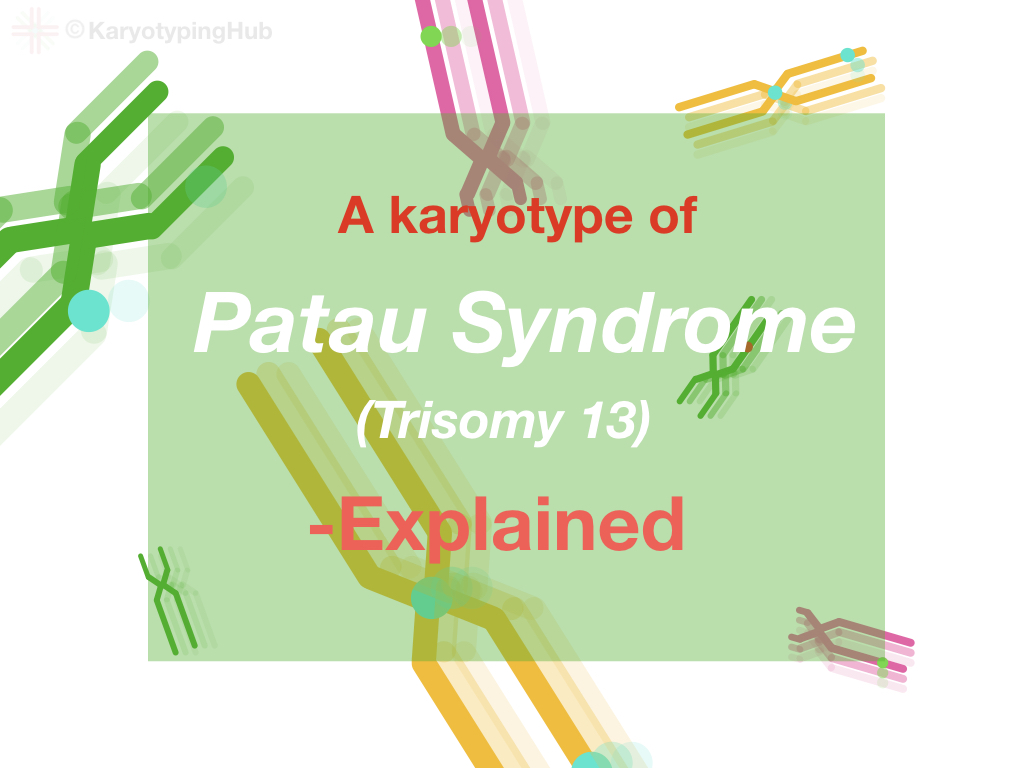 A karyotype of Patau syndrome explained.