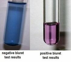 Biuret's test for proteins