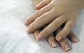 Juvenile arthritic hands