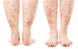 Psoriasis on legs - front and back views