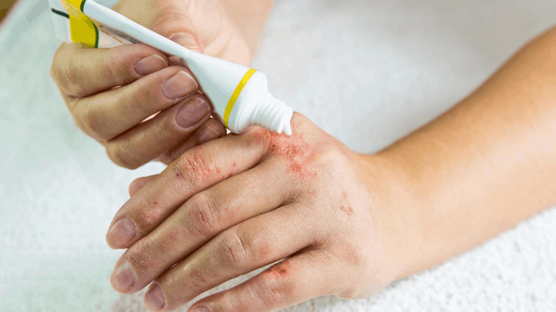 Contact Irritant Dermatitis