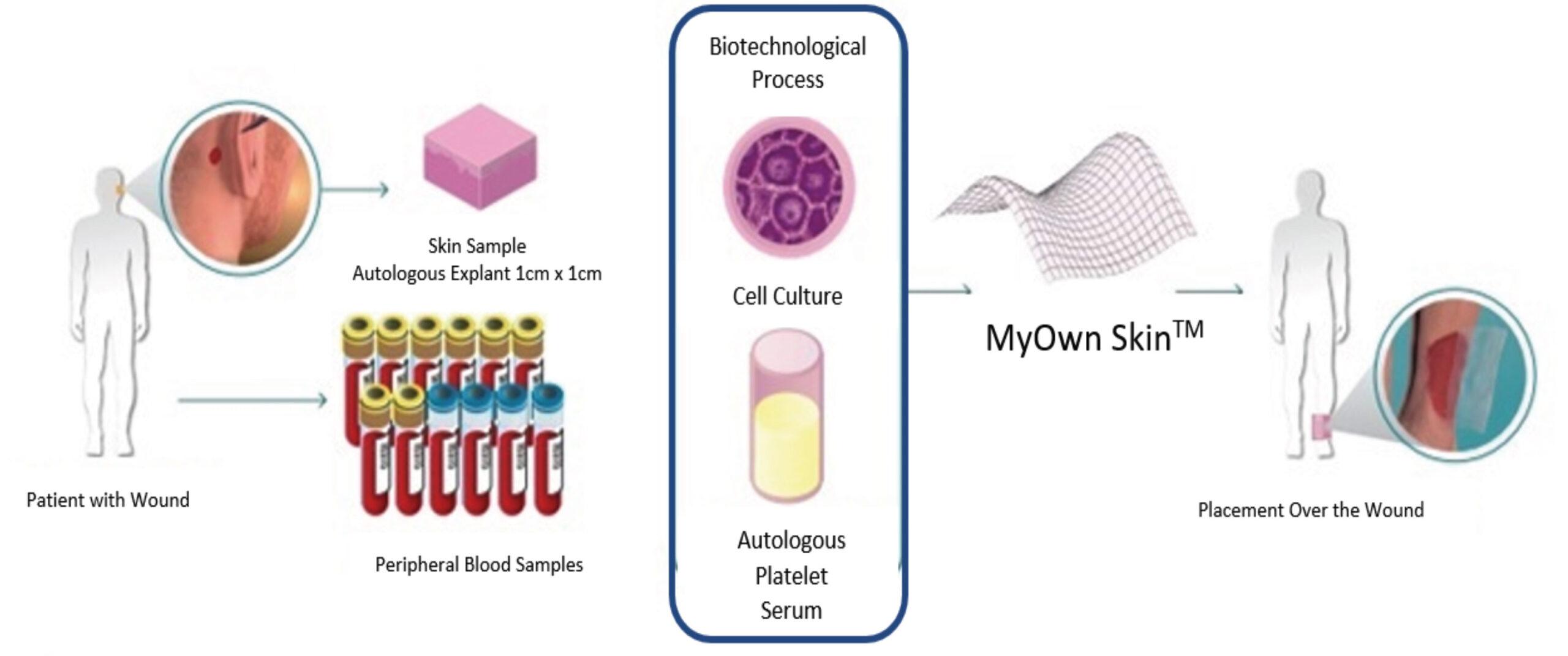 MyOwn Skin