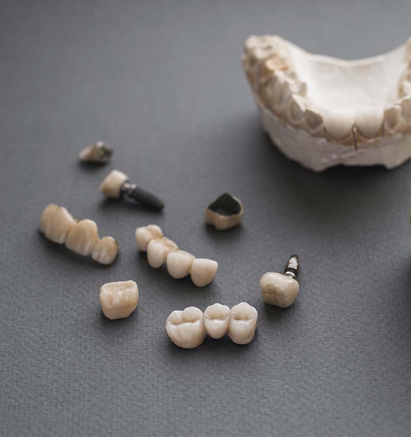 restorative dentistry crowns and implants illustration